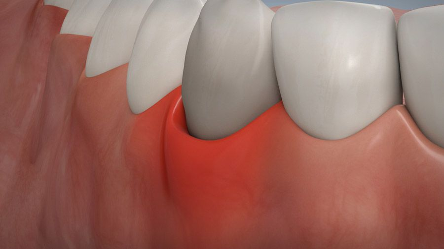 Parodontitisbehandlung 06